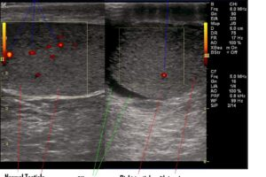 Scrotal ultrasound: it's what's inside that matters