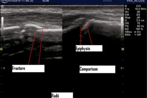 Don't be subtle: Use POCUS for hard to see fractures