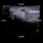 S/Q saline injection for pediatric art lines placed with POCUS guidance?