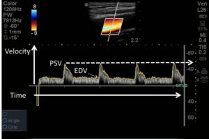 EDE 3 Article: Carotid #POCUS in Cardiac Arrest
