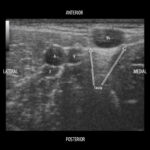 Peripheral IV placement with POCUS