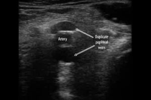Duplicated Superficial Femoral Vein